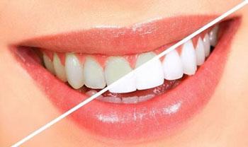 دندان براق