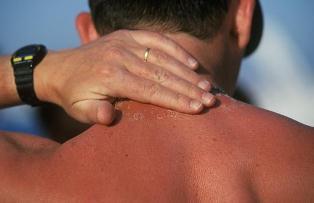 آسیب های پوستی در اثر خورشید