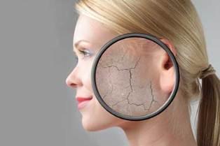 مشکل رایج خشکی پوست