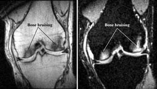 نشانه های کبودی استخوان